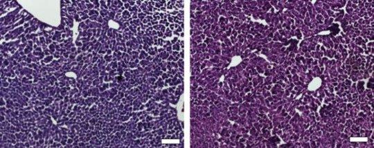 180426125937 1 540x360 - CRISPR/Cas9 silences gene associated with high cholesterol